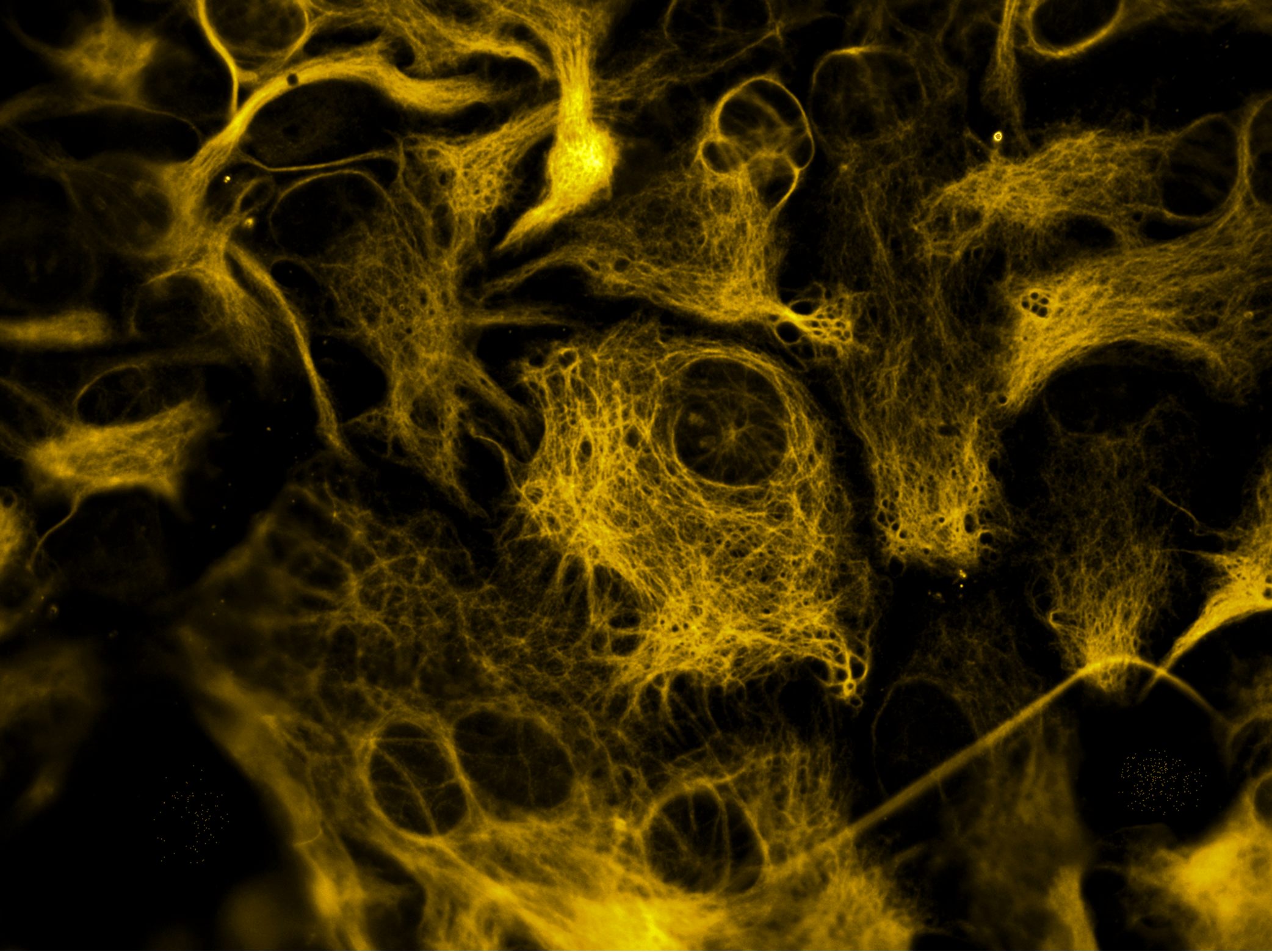 A microscope image showing orange coloured brain cells called astrocytes